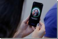 iPhoneX начал причинять владельцам боль