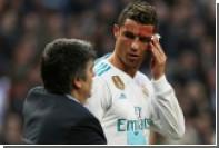Роналду оценил свою внешность после травмы лица