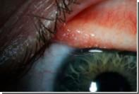 У американки из глаз извлекли 14 редких глистов