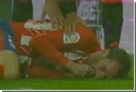 Капитан «Атлетико» поборолся за мяч и остался без зубов