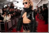 Леди Гага рассказала о хронической боли в бедре