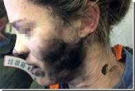 На рейсе в Австралию у пассажирки на голове взорвались наушники