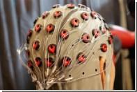 Раскрыт неожиданный эффект электростимуляции мозга