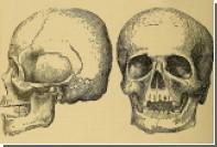 Найдены древнейшие зубные пломбы