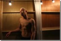 Спасенный от колдунов альбинос из Африки стал моделью