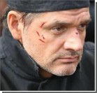 Актер Лавроненко госпитализирован после тяжелейшей аварии