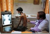 Глобальная эпидемия ВИЧ и туберкулеза пошла на спад