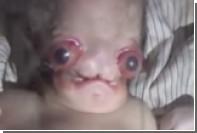 В Индии умер прозванный «Чужим» младенец
