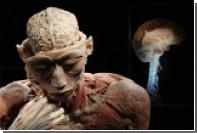 Человеку с «мертвым» мозгом вернули сознание