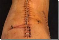 Футболист сборной России показал ногу после операции