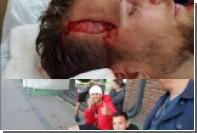 Аргентинский футболист получил пробоину в голове после столкновения с игроками