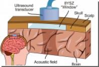 В США впервые вживили в мозг человека влияющий на настроение имплант
