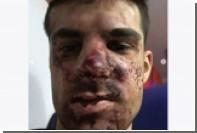 Избитый футболист «Зенита» раскрыл подробности инцидента
