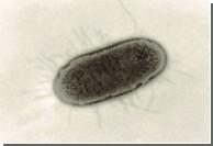 Возбудитель сифилиса был завезен в Европу из Америки