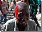 На Гаити сирот начали продавать на органы