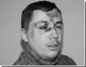 В Ногинске избит помощник депутата Госдумы Олега Михеева