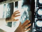 Эксперт: Обещание властей Украины отказаться от газа нереально и угрожает ростом онкологических заболеваний