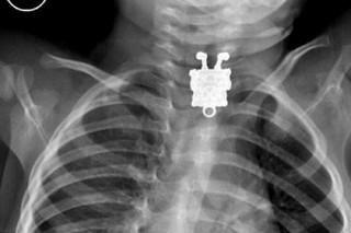 Арабские врачи извлекли из пищевода ребенка Губку Боба