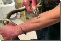 Мечтающий создать вакцину от яда американец позволил змеям укусить себя 160 раз