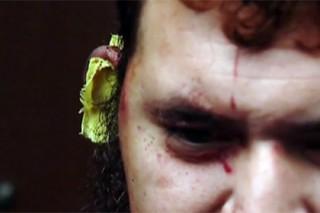 В США мексиканец откусил ухо соседу из-за спора о Трампе