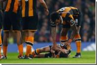 Футболист «Халл Сити» получил перелом черепа в матче с «Челси»