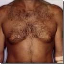 Шампунь стал причиной роста груди у трёх мальчиков