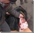 В больницах Киева очереди в операционных: у активистов пулевые раны