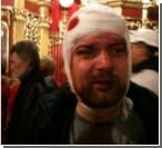 """""""Титушки"""" зверски избили журналиста. Фото"""