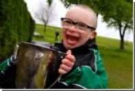 Шотландцы признали гол мальчика с синдромом Дауна лучшим в январе