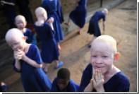 В Танзании приговорили к смерти четырех убийц женщины-альбиноса