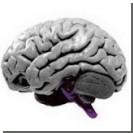 Главной причиной гипертонии является нарушение деятельности мозга