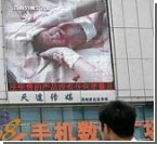 Китайцы прилюдно продемонстрировали операцию кесарева сечения