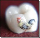 Татуировка на зубах – последний писк моды. Фото