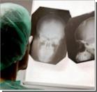 Житель Германии прожил 15 лет с карандашом в голове