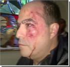 В Венесуэле депутаты подрались до крови. Фото, видео