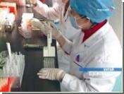 Ученые нашли птичий грипп у умершего два года назад человека