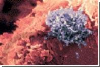 Раскрыт механизм развития Т-клеточного лейкоза