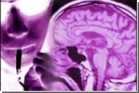 """""""Искусственный никотин"""" поможет шизофреникам"""
