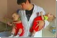 Разделенные сиамские близнецы готовятся к выписке из Филатовской больницы