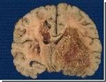 Рак мозга будут лечить с помощью рентгенотерапии