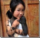 В Китае родители отказались от дочки-оборотня.ФОТО