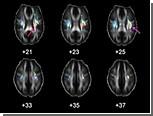 Ученые выбрали кандидатов в гены интеллекта