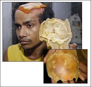 Удар током лишил индуса черепа. Фото