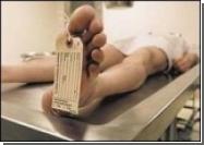 Более 40 процентов европейцев умирает от болезней системы кровообращения