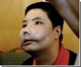 Китайский крестьянин с пересаженным лицом возвращается домой
