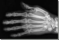 Белорусские хирурги пришли 4-летнему мальчику оторванную руку