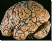 Операции на сосудах мозга будут проводить без хирургического вмешательства