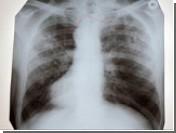 Туберкулез, обманывающий иммунитет, реально излечить, если заблокировать иммунную систему