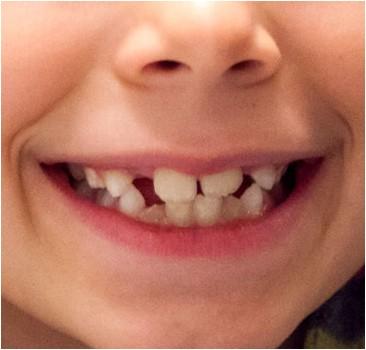 Ученые начали выращивать зубы из мочи