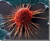 Выключение дефектного гена останавливает рост раковой опухоли